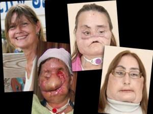 Charla tras el trasplante de cara al que tuvo que ser sometida